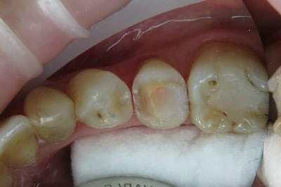 Case Study Endo Treated Pre-Molar After Prep From Top
