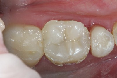 Case study OVC3 weakened molar Pre Polish from top